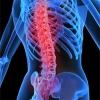 Osteoporosis: Healer or Disease?