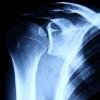 Reversing Osteoporosis
