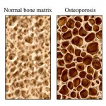 Beware Osteoporosis Drugs Medication